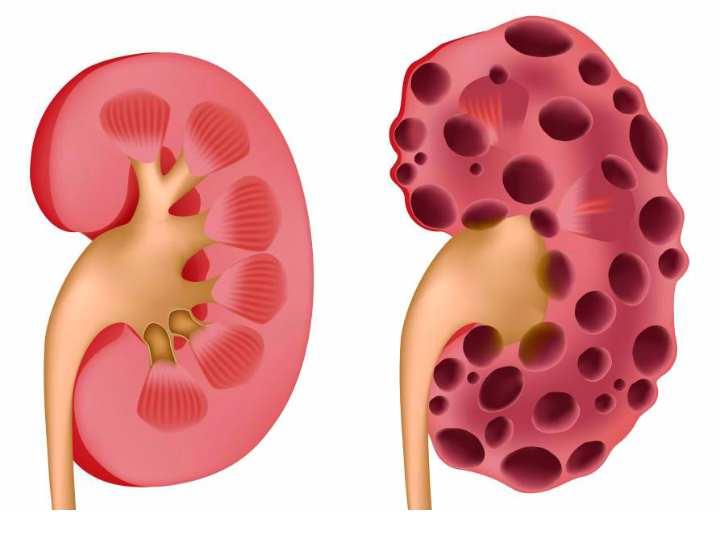 Воспаление поджелудочной железы,
